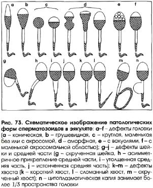 kak-uvelichit-skorost-spermatozoida