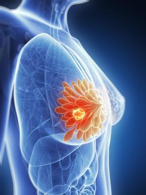 Лечение рака груди (карциномы)