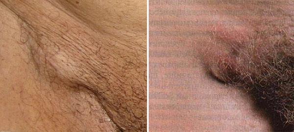 Восполение лимфоузлов в паху после секса