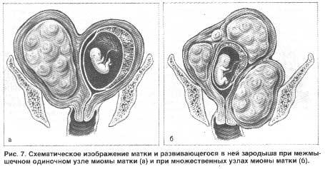 Матвеева к р аветисова беременность