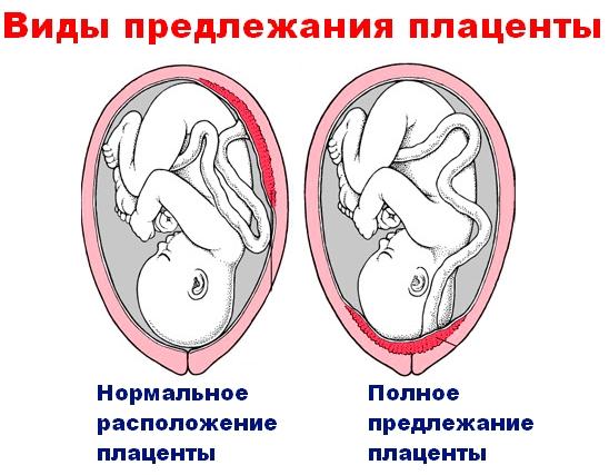 Признаки замершей беременности на ранних