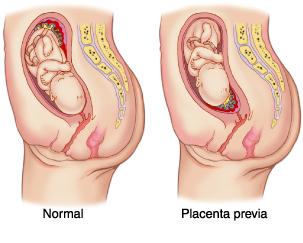 nizkaya-platsentatsiya-seks