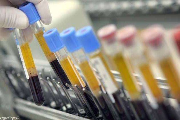sperma-zheltogo-tsveta-lechilsya-ot-hlamidioza